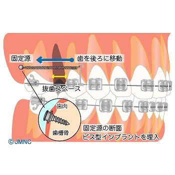 歯科矯正用アンカースクリュー