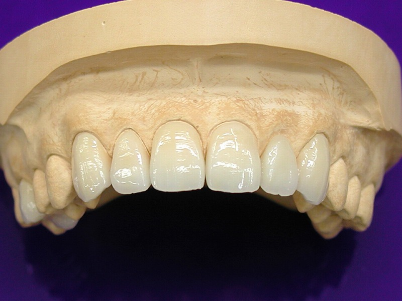 セラミック歯で前歯・歯並びを綺麗に