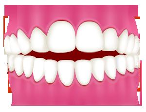前歯が嚙み合わない(開咬)