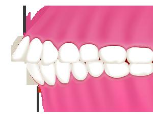 出っ歯・上顎前突