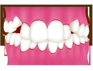八重歯・乱ぐい歯・ガタガタな歯並び