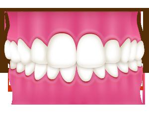 み合わせが深く下の前歯が見えない(過蓋咬合)
