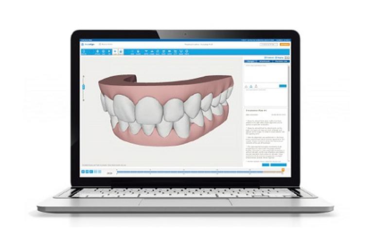 歯の移動を画像や動画で確認できる