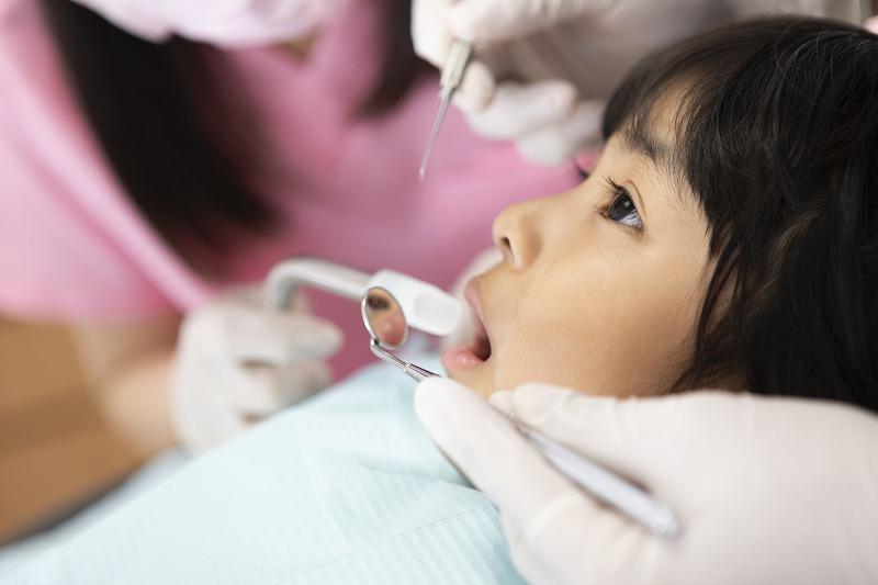 歯の黒い点は虫歯?4つの原因と対処法