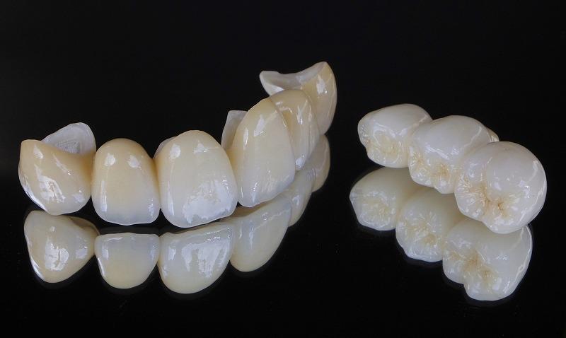 天然歯の繊細な色調・透明感まで再現できる